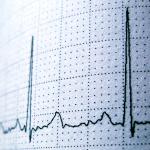 Eletrocardiograma: saiba mais sobre o exame que detecta arritmias cardíacas